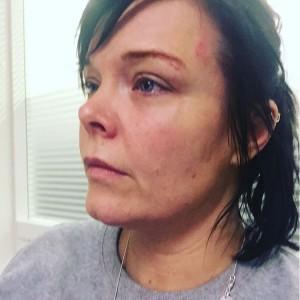 Фото бывшей вокалистки Nightwish Анетт Ользон после нападения наркомана